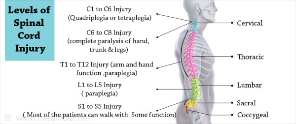 Spinal Cord Injury - Causes, Symptoms, Diagnosis ...