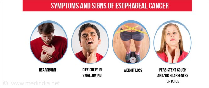 Signs & Symptoms of Esophageal Cancer