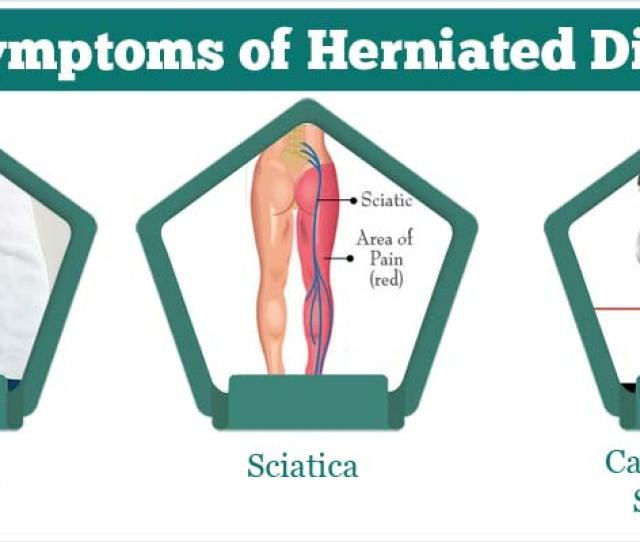 What Are The Symptoms Of Herniated Disc