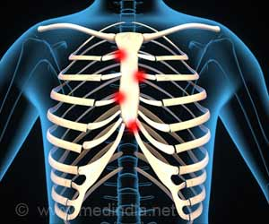 Costochondritis - Tietze's syndrome - Causes - Symptoms - Signs - Diagnosis - Treatment