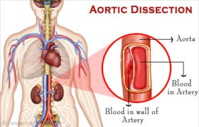 Aortic Dissection | Aortic Aneurysm - Types, Causes, Symptoms ...