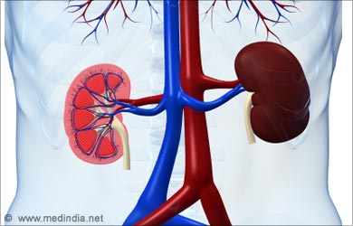 Ascites: Kidney Failure
