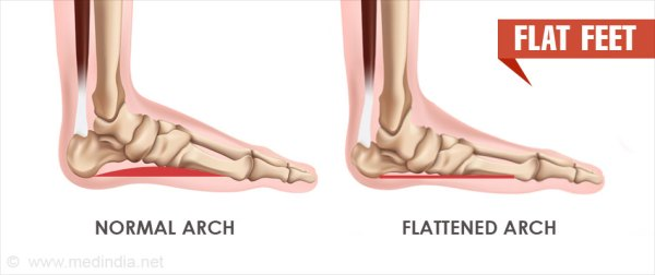 Flat Feet | Pes Planus - Causes, Symptoms, Diagnosis ...