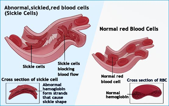 Sickle Cell Anemia–Causes-Symptoms-Diagnosis-Treatment ...