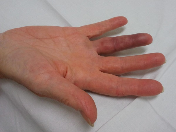 spontaan een blauwe vinger medischcontact
