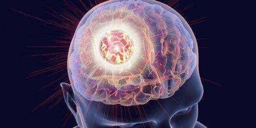 Tumeur cérébrale : la prévention du cancer du cerveau