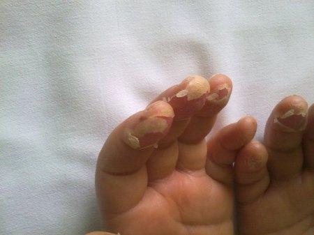 Sindrome di Kawasaki - esfoliazione dita