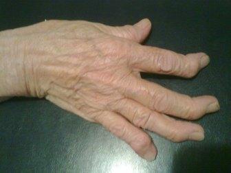 Mano artrosica: si noteranno le deformazioni articolari che interessano in particolare le articolazioni interfalangee distali