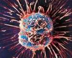 Pathologie tumorale (Suite)
