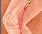 Artériopathies iatrogènes et toxiques