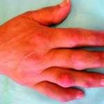 Arthropathies métaboliques (La Goutte)
