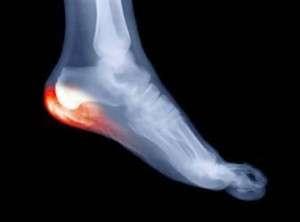 Diagnostic d'une douleur du pied