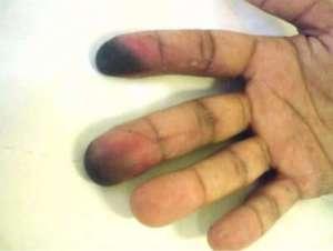 Thromboangéite oblitérante ou maladie de Buerger