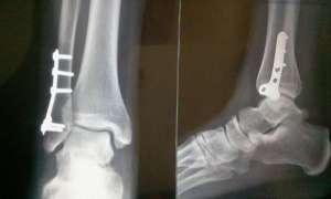 Fracture bimalléolaire