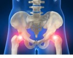 Fracture de l'extrémité supérieure du fémur chez l'adulte