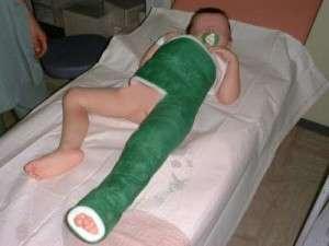 Fracture de l'extrémité supérieure du fémur chez l'enfant