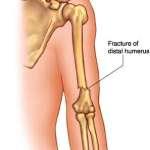 Fractures de l'extrémité supérieur de l'humérus (points essentiels)