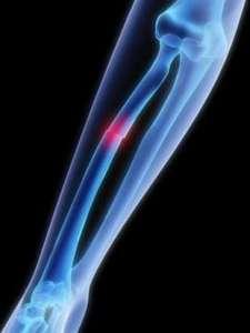 Fractures de l'avant bras