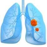 Cancer bronchique du sujet âgé