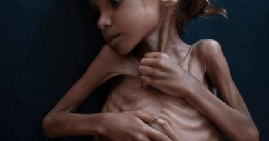 O ratu u Jemenu nitko ne priča, gladne bebe umiru bez medijske pompe