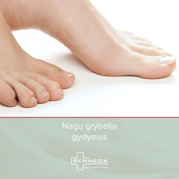Kojų nagų grybelio ištyrimas ir dermatologo konsultacija Renmeda