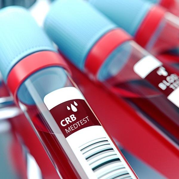 CRB kraujo tyrimas