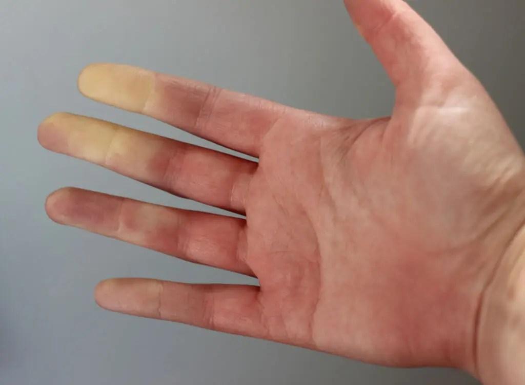 finger schmerzen nicht einfach so