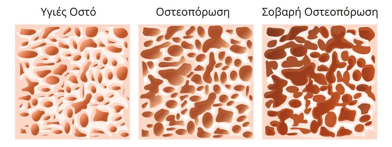osteoporosi stadia inside