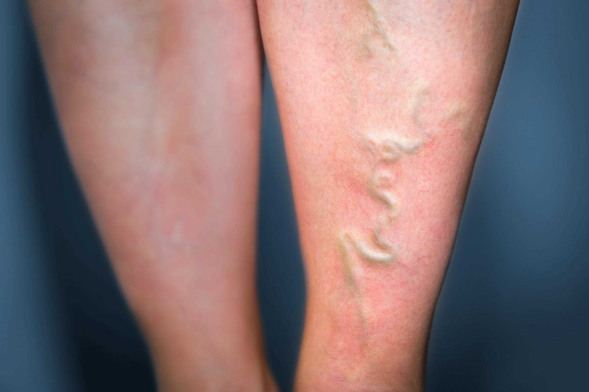 thrombose ursachen symptome