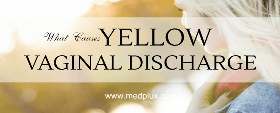 foul smelling yellow vaginal discharge