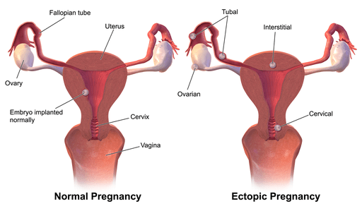 Missed Period Negative Pregnancy Test White Discharge? (7