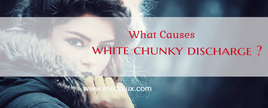 White chunky discharge no odor no itch: Is it Yeast Infection?