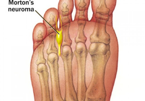 bottom foot pain near toes