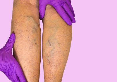 calf swelling varicose vein