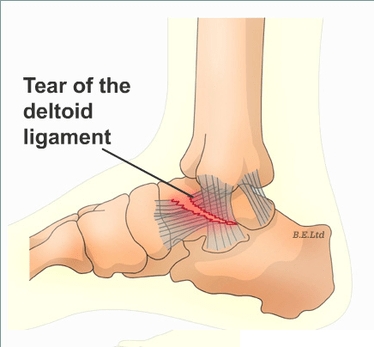 medial foot pain