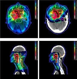 radiation-oncology