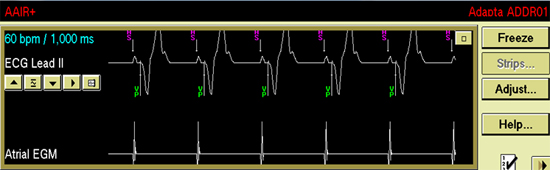 managed ventricular pacing mvp feature medtronic academy - 550×170
