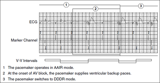 managed ventricular pacing mvp feature medtronic academy - 550×284