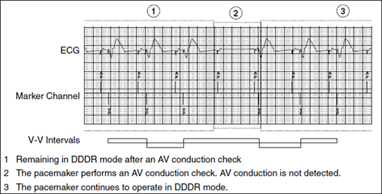 managed ventricular pacing mvp feature medtronic academy - 550×280