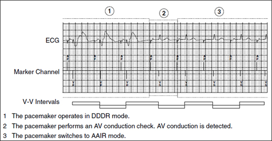 managed ventricular pacing mvp feature medtronic academy - 550×285