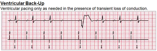 managed ventricular pacing mvp feature medtronic academy - 550×179