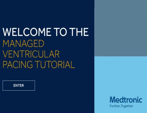 managed ventricular pacing mvp feature medtronic academy - 480×369