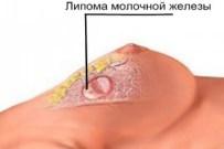 Липома груди у женщин