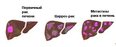 17663694-zabolevaniya-pechenii-zhelchnogo-puzyrya