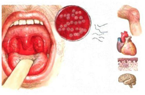 осложнения от бактериального тонзиллита