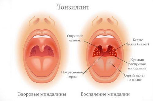 тонзиллит