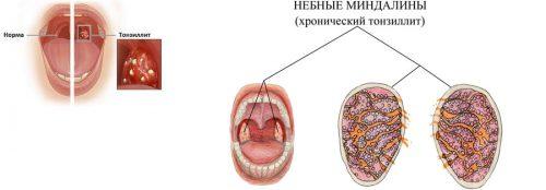 аллергическая форма тонзиллита