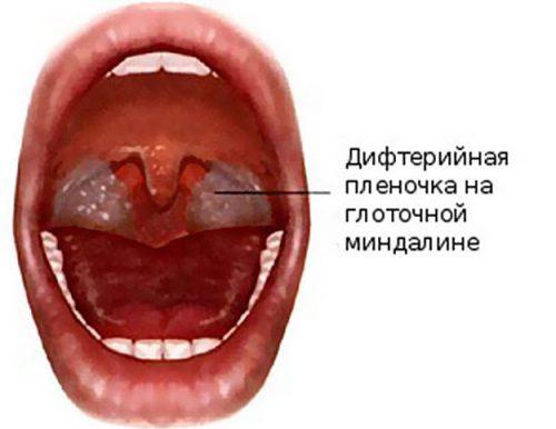 фибриозная ангина