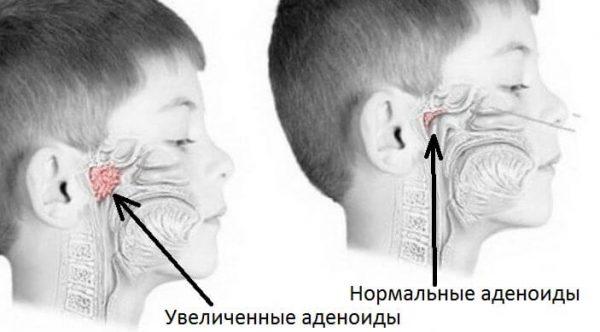 хронический аденоидит у детей