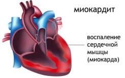 miokarda